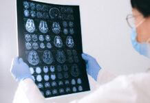 Wyposażenie medyczne - rękawiczki jednorazowego użytku